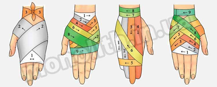 Повязки на кисть руки