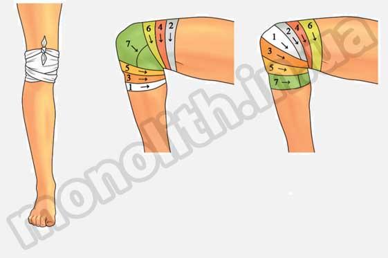 Повязки на колено